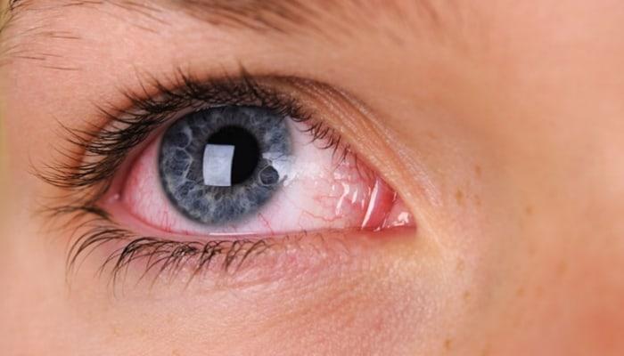 डोळे लाल होण्याची कारणे & घरगुती उपाय मराठी | eye redness problem in marathi