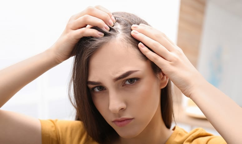 how to get rid of psoriasis scalp